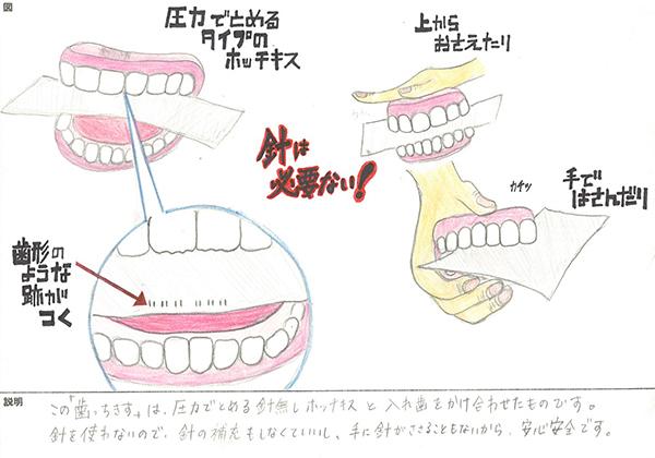 歯っちきす